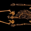 King Richard III Bones